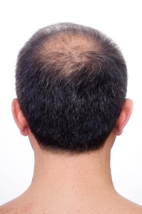 Haarausfall Und Abhilfe Dagegen